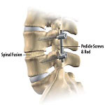 spinal fusion in Iran used to fuse two or more vertebrae