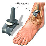 ankle replacement surgery in Iran using ankle prosthesis