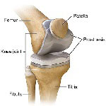anatomy of a replaced knee joint after knee replacement surgery