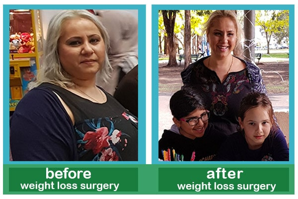 Before & After gastric sleeve - AriaMedTour's patient Floria