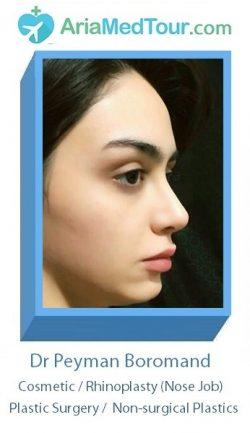 Dr Peyman Boromand - nose job in Iran - ariamedtour
