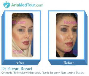 Dr Farzan Rezaee - Rhinoplasty