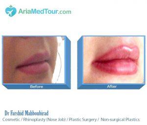 plastic surgery in iran