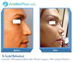 nose surgery in Iran - Dr Mahboubirad