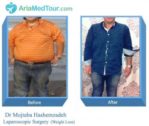 Weight Loss (laparoscopic surgery in Iran) - Dr Hashemzadeh