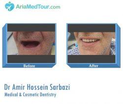 Aria medical tourism in iran