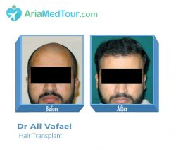 Hair Transplant in Iran- Dr Ali Vafaei