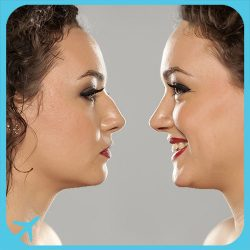 RHINOPLASTY ( Nose job package) in Iran