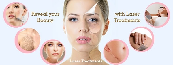 types of cosmetic laser treatments