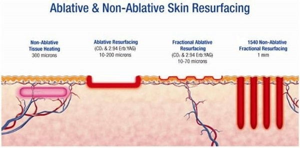 Ablative and non-ablative lasers