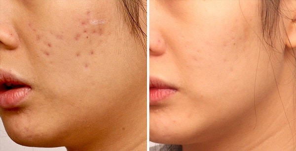 acne scar removal with lasers