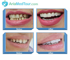 Before After Dentistry Photos