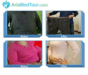 Before After Weight Loss laparoscopic surgery in Iran Photos