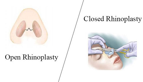 open rhinoplasty vs. closed rhinoplasty
