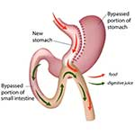 Gastric mini bypass in Iran