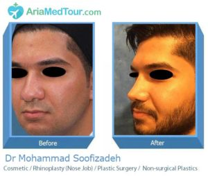 Rhinoplasty in iran - Nose Job in Iran