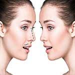 Primary-rhinoplasty