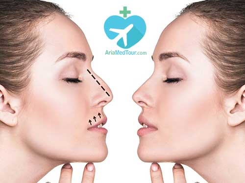 nose job before and after with ariamedtour