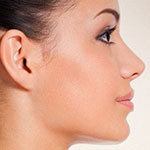 Secondary-Rhinoplasty-(Revision-rhinoplasty in Iran