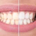 Tooth whitening in Iran