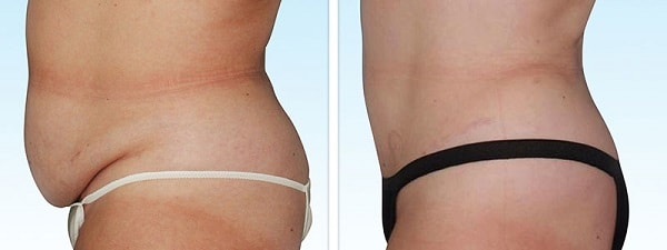 tummy tuck in iran before and after
