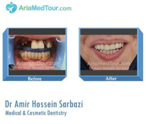 Dr Amir Hossein Sarbazi - Medical and Cosmetic Dentistry