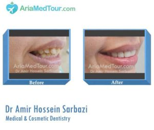 Dr Amir Hossein Sarbazi - Medical and Cosmetic Dentistry in Iran