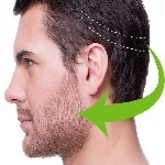 beard transplant Iran