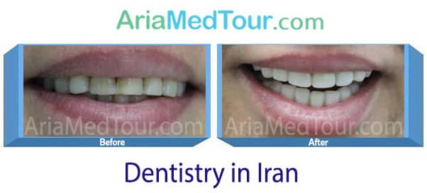 porcelain veneers in Iran before and after photos