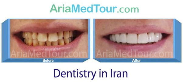 dentistry in Iran before and after