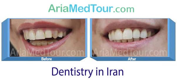 dentistry in Iran before after photo
