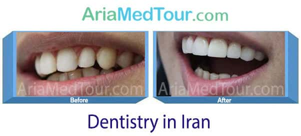 orthodontic treatment before and after iran
