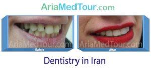 Dentistry in Iran