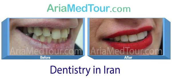 orthodontics and dental veneers in iran before and after