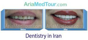 dentistry photos Iran