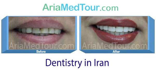 dental veneers in iran before and after