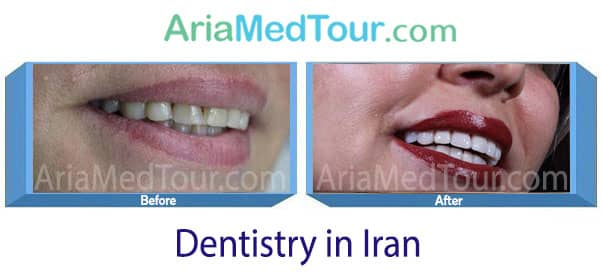 Dentistry Before & After Photo Gallery