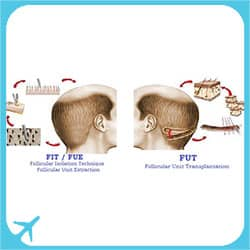 FIT, FUE and FUT Hair Transplant methods in Iran