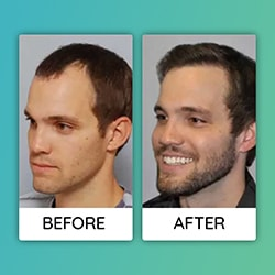 mustache and beard transplant before after