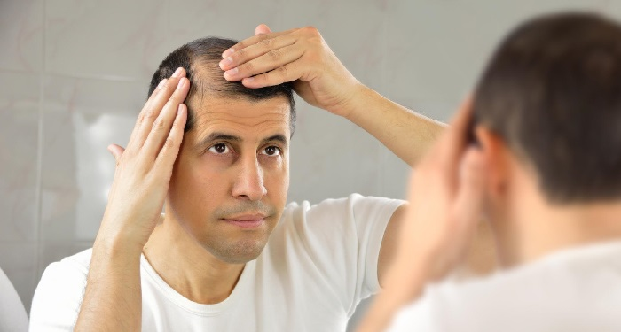 man checking his balding temple in front of mirror