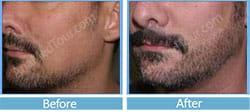 facial hair transplant Iran