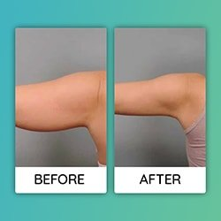 arm lift Before After iran