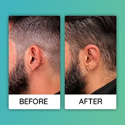 otoplasty ear Before After iran