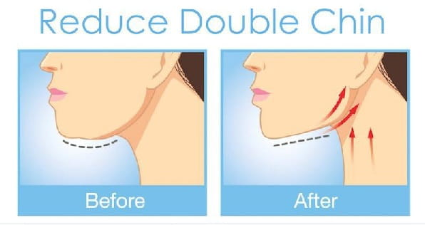 How to get rid of double chin?