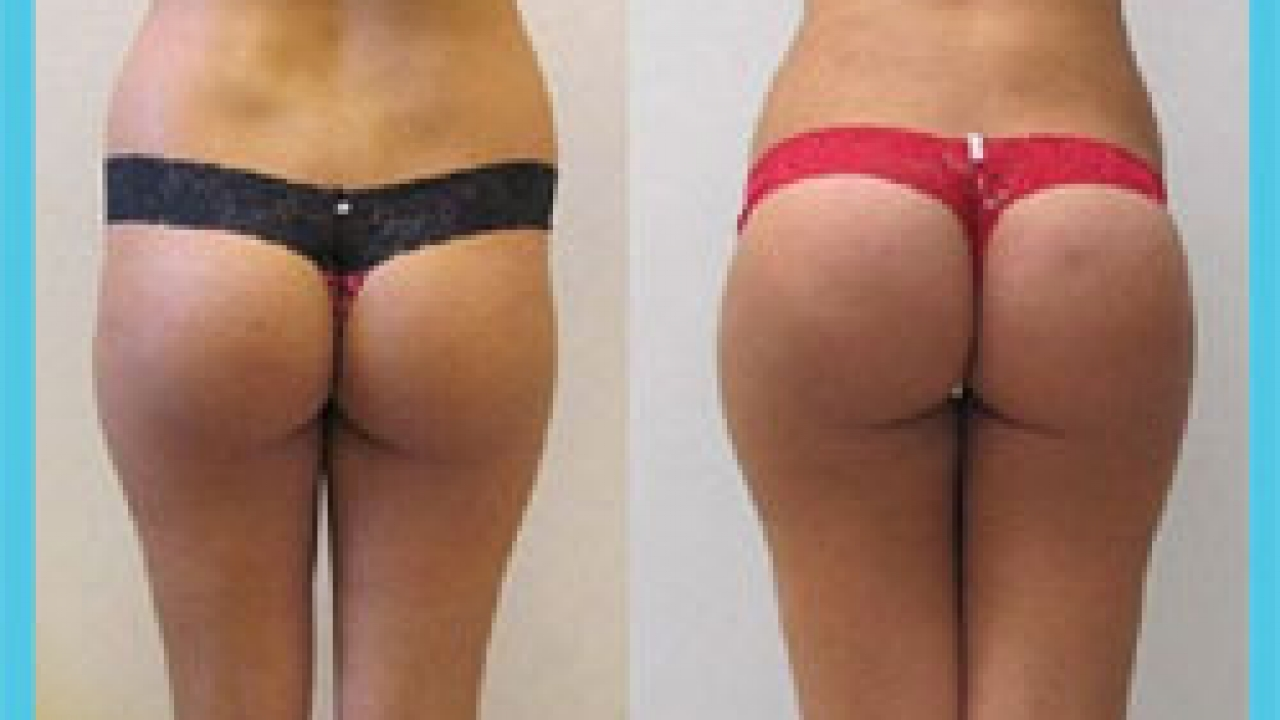 Brazilian Butt Lift in Iran | Butt Implants in Iran