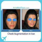 cheek augmentation