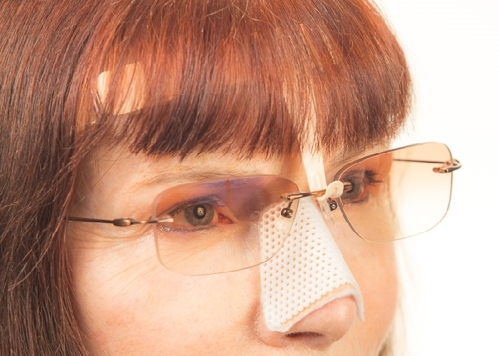 woman wearing eyeglasses after nose job while they are taped to her forehead
