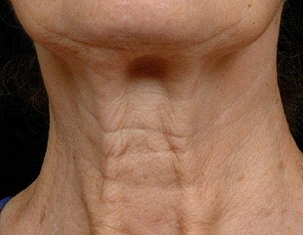 loose neck skin