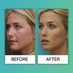 cheek augmentation Before After iran