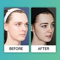 forehead contouring Before After iran